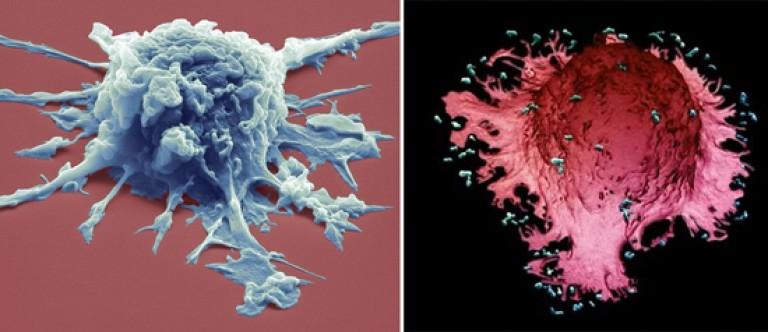 A HIV-fertőzés meghatározása. A HIV-fertőzés etiológiája és patogenezise