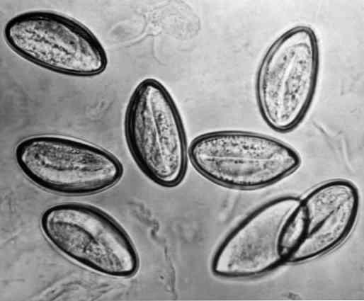 a pinworms fejlődési ciklusa és kezelése a legjobb parazitaellenes szer
