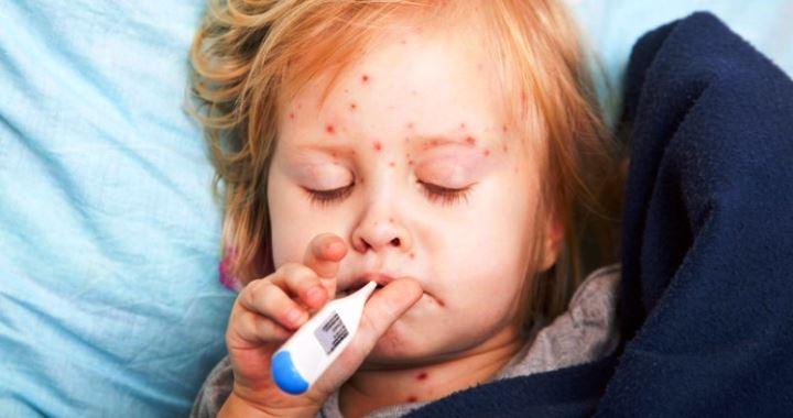 Skarlát - Tünetek és kezelés
