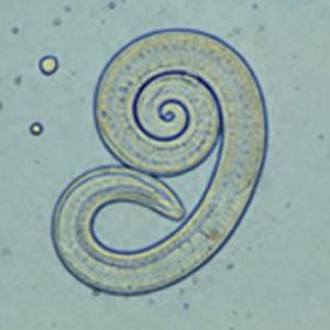 trichinella post rövid hogyan lehet gyorsan megszabadulni a féreg parazitáktól