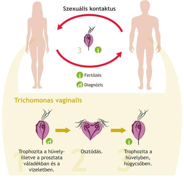 Trichomoniázis - Tünetei, diagnosztikája, kezelése
