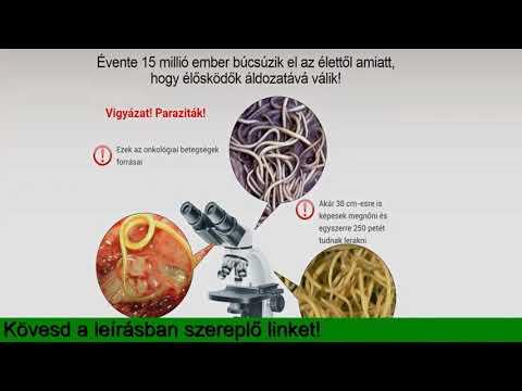 Emberi paraziták gyógyszerei - Típusok - Mely parazitatabletták jobbak az emberek számára
