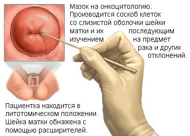 dysbiosis férfiakban a húgycső kenetében egyetlen készítmény férgekhez