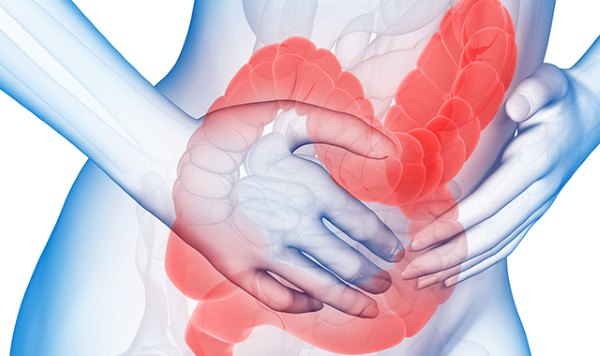 A vastagbélrák és a végbélrák tünetei - mire figyeljünk? | nenyp.hu