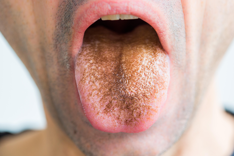 Játék szaga a szájból
