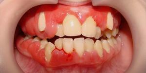 fájó íny szájszag hogyan kell kezelni