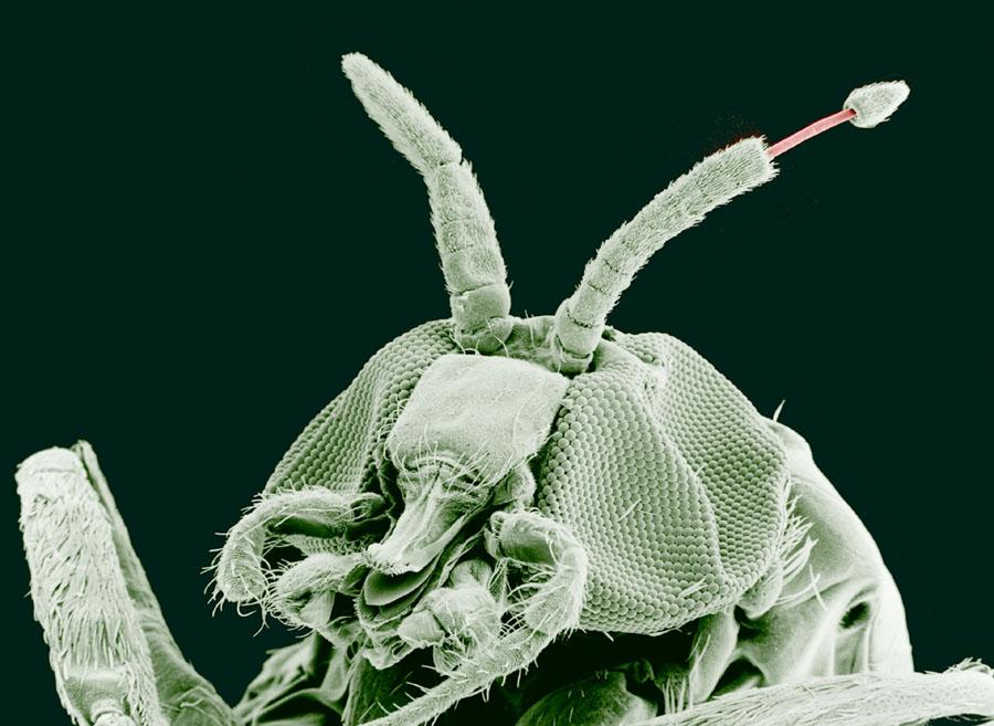 onchocerca paraziták