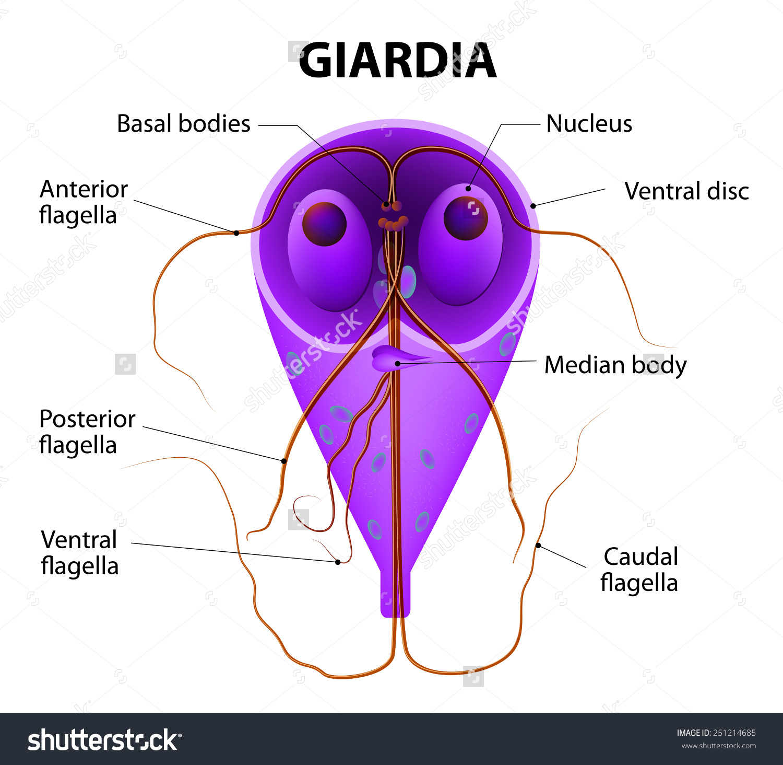 giardiasis ciszták