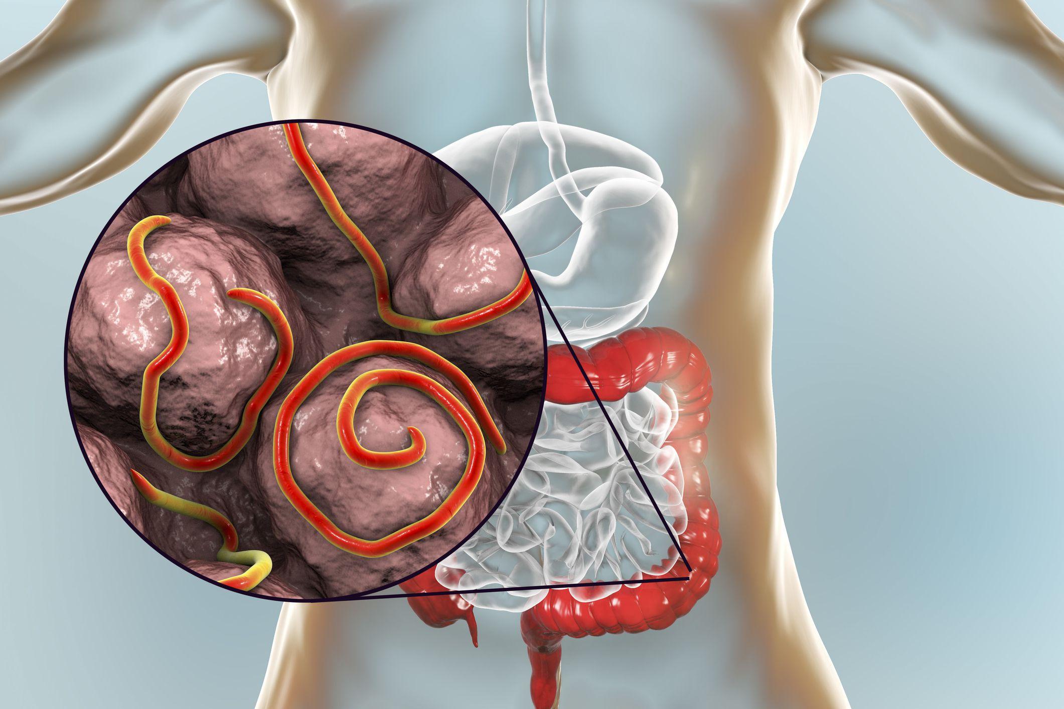 Pinworm kapcsolódási szervek.