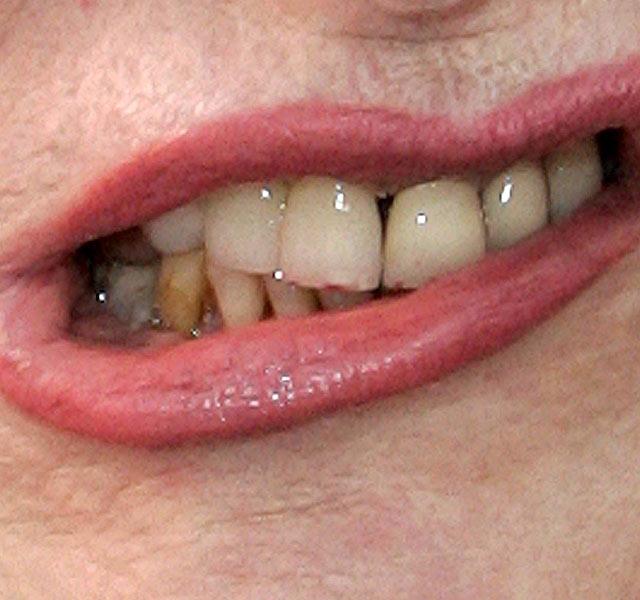 peroxid a száj szagának eltávolítására