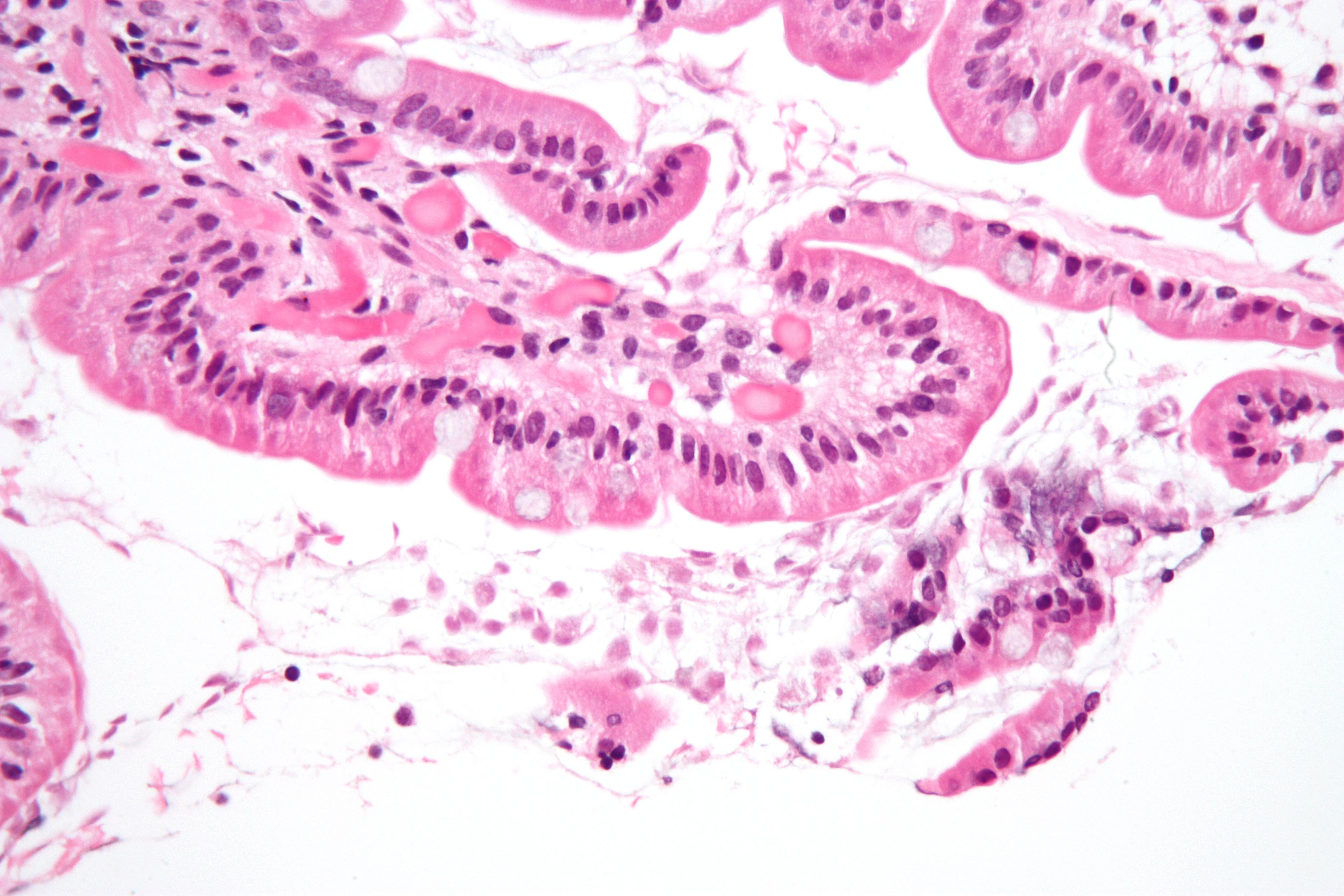 giardiasis ig g