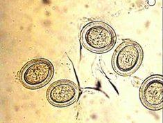 enterobiasis esetén tojásokat találnak
