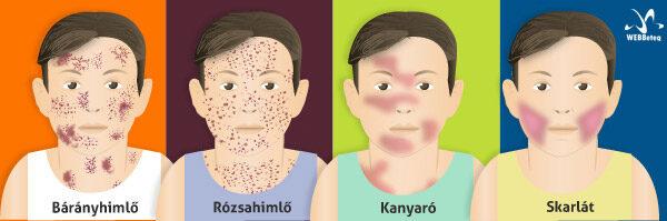 Pinworms a gyermekekben: hogyan fertőzöttek, tünetek, kezelés, diagnózis, megelőzés