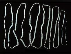 horgasfejű galandféreg Mihály Karpinsky megtisztítása a parazitáktól