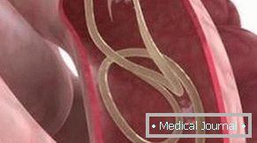 Trichinózis: okok, tünetek, diagnózis éskezelés