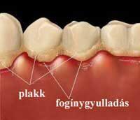 fogbetegsegek tünetei örökre megszabaduljon a rossz lehelettől