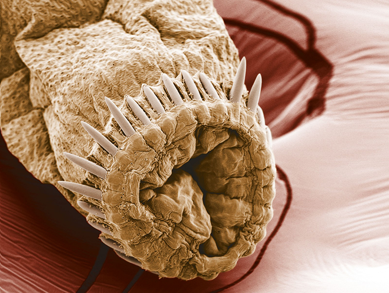 Fehér paraziták emberben, Milyen bélférgek kerülhetnek szervezetünkbe?