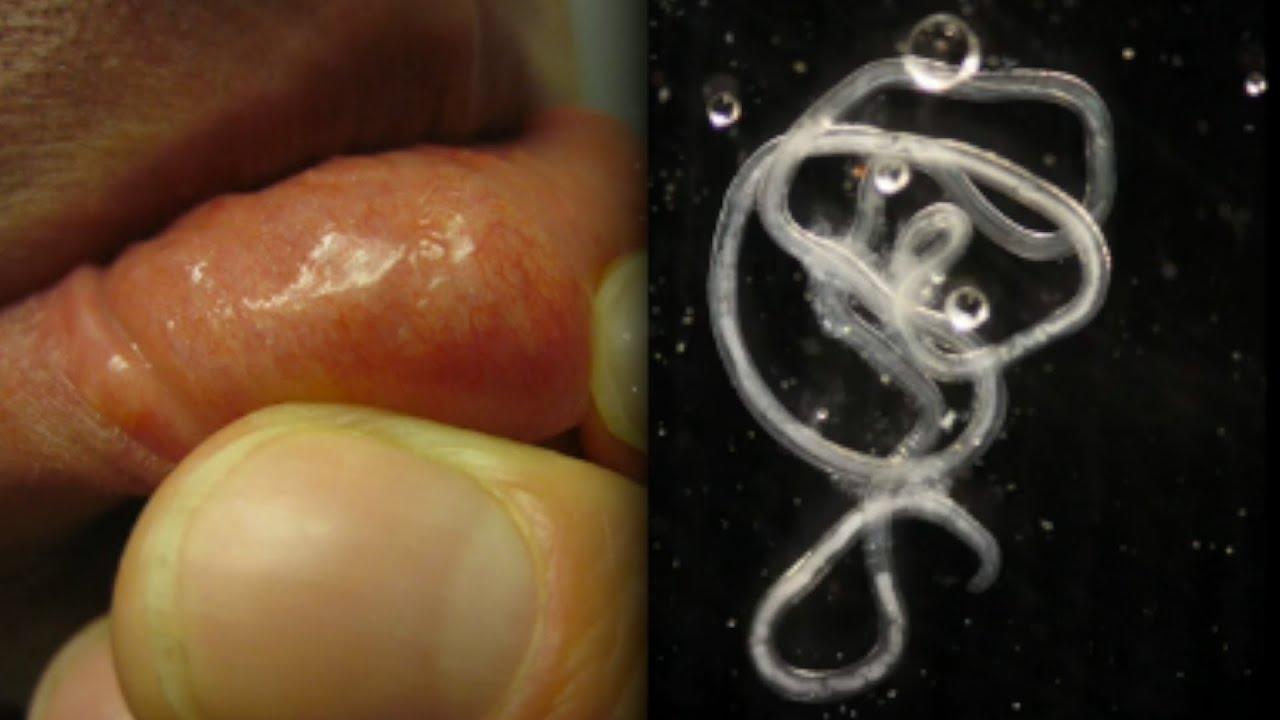 példákat mutatnak a parazita szervezetekre távolítsa el a féreg
