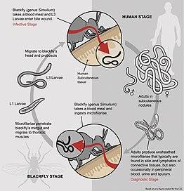 Hogyan lehet inni parazita gyógyszereket. Milyen gyógyszereket inni a férgek megelőzésére