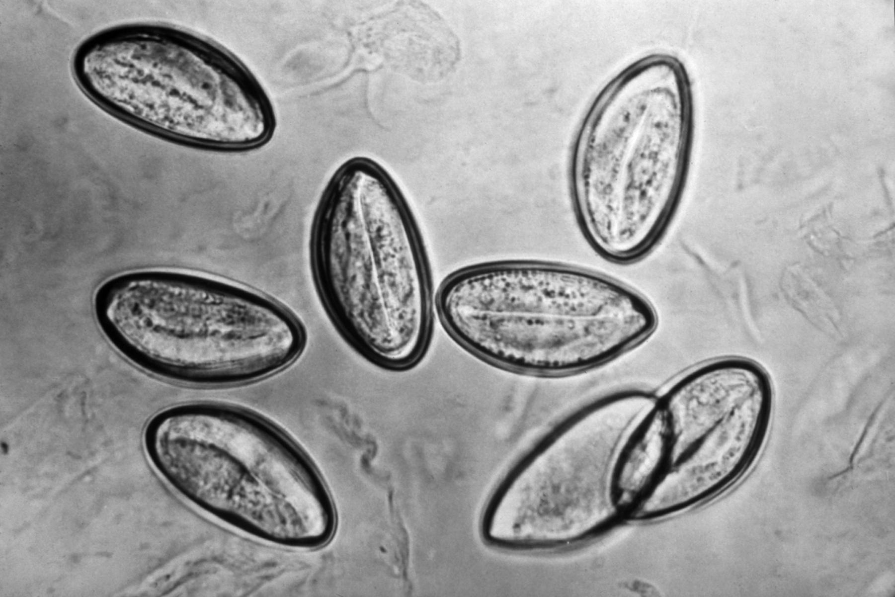 pinworms életciklusa az emberben