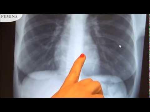 tüdő helminták címe