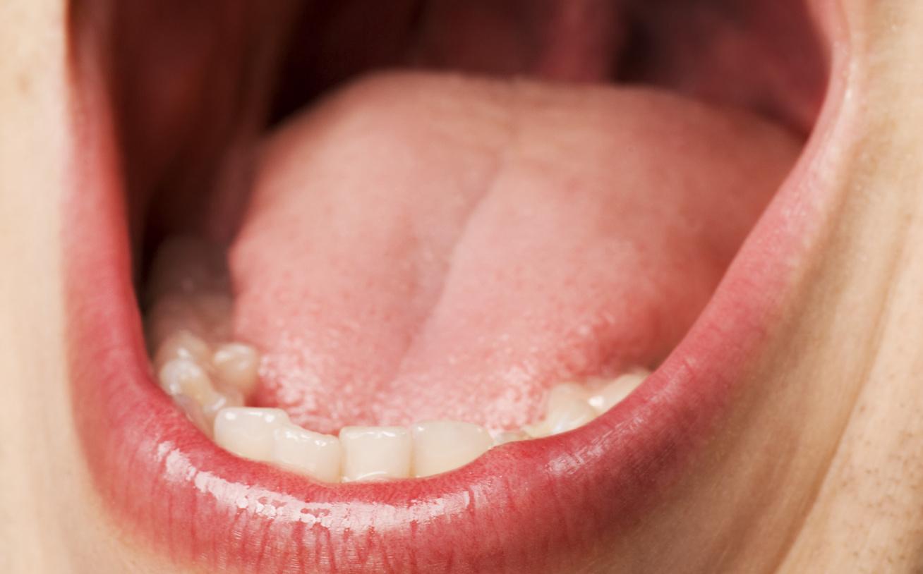 Fémes szag a szájból egy felnőttnél Az acetonos lehelet okai, az acetonos szájszag kezelése