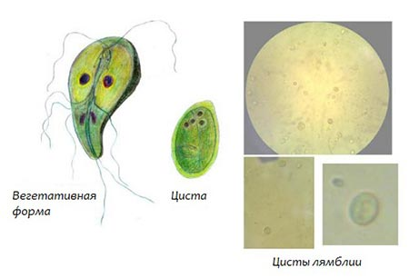 giardiasis serdülőknél