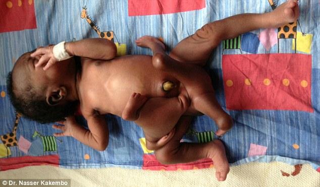 Ritka születési rendellenesség – a parazita ikertestvér