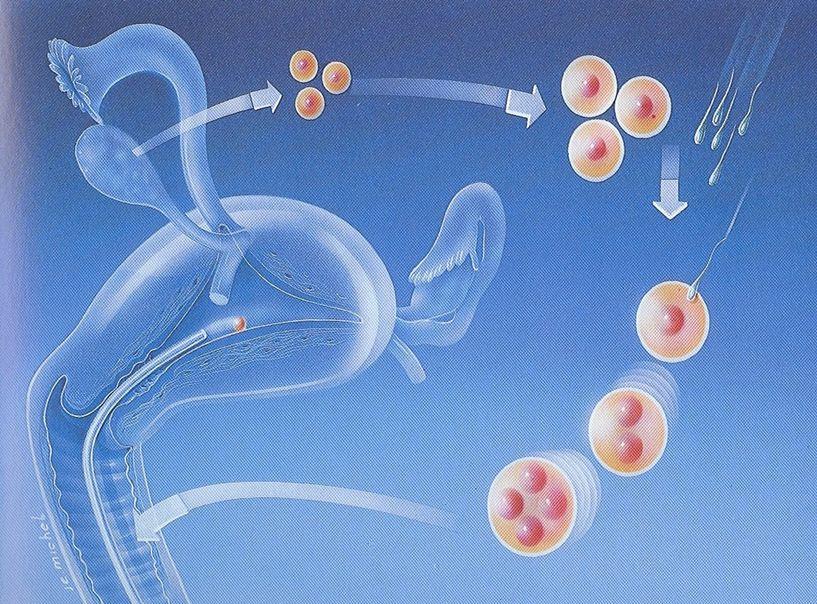 helminth petesejtek meghatározása A helminthiasis lehet a krónikus appendicitis oka