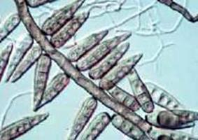 helminthosporium oryzae padi)