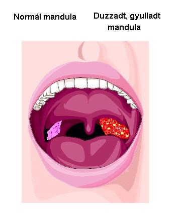 5 betegség, amitől büdös lesz a szája - Dívány