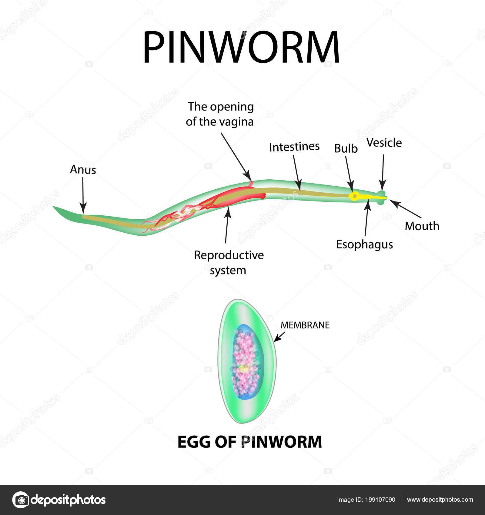 A pinworms látható a székletben