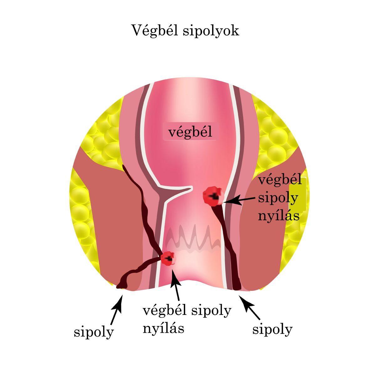 a nyaki szemölcsök kriodestrukciója orális papilloma képek