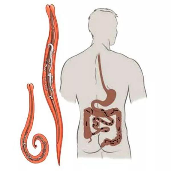 ankilostomiasis emberben tünetei kerekféreg- fertőzés útjai és megelőző intézkedések