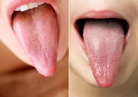 Minek a tünete lehet a lepedékes nyelv?