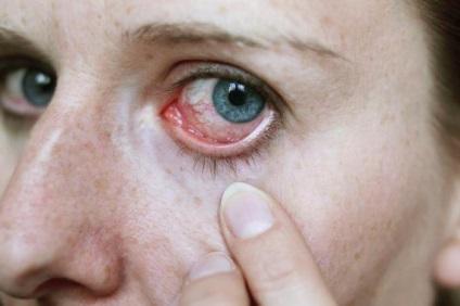 szemféreg tünetei