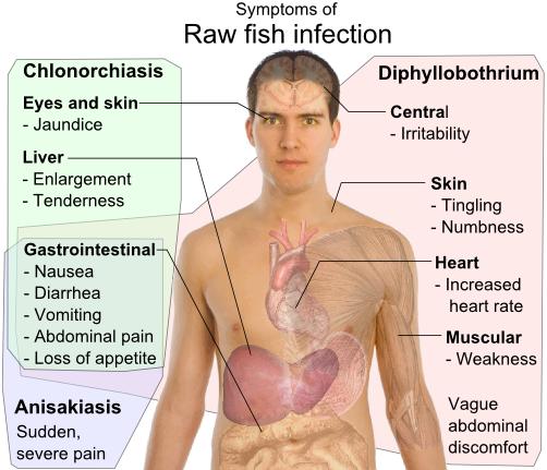 diftillobothriasis forrás