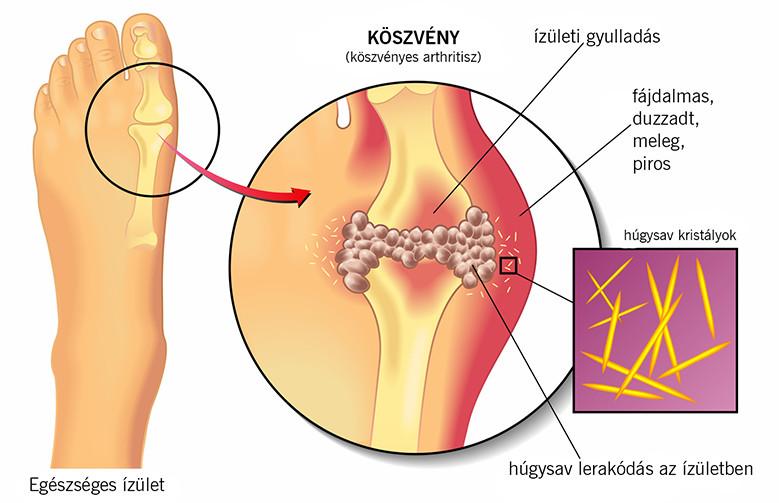 Fájdalmat okozhat a gyomorférgekben