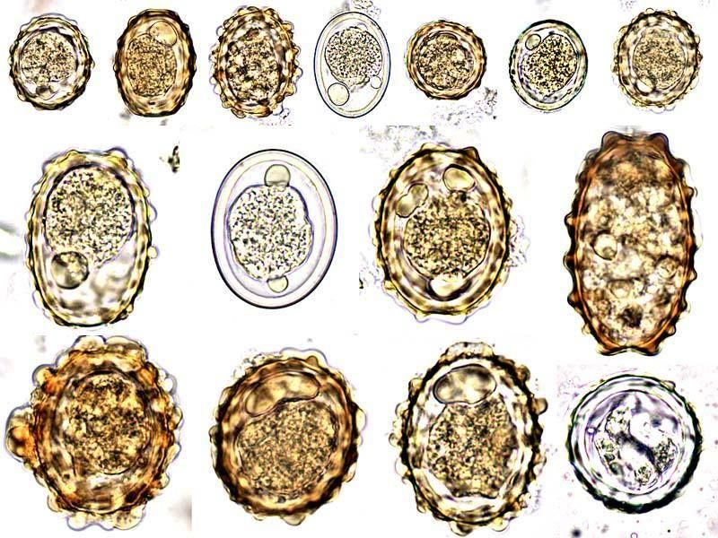 Ascaris paraziták az emberi testben