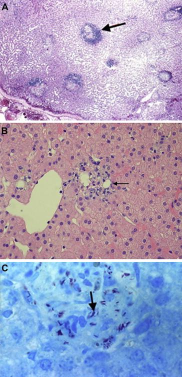 giardia liver disease