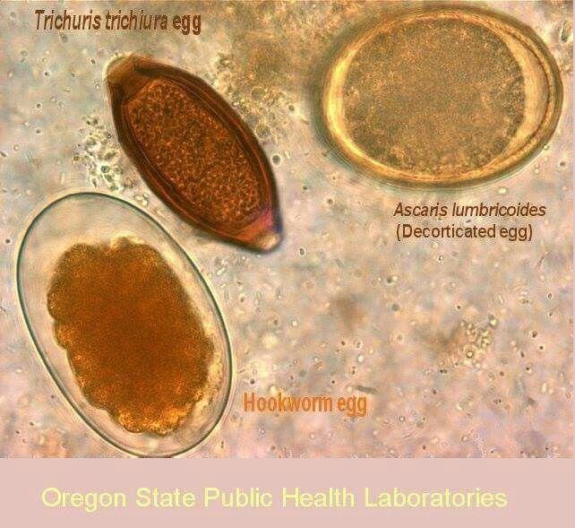 vitalife méregtelenítő étrendkiegészítő tisztítás a parazitáktól füsttel