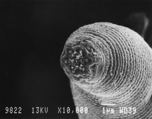 Jótékony paraziták az emberi testben - Jótékony paraziták