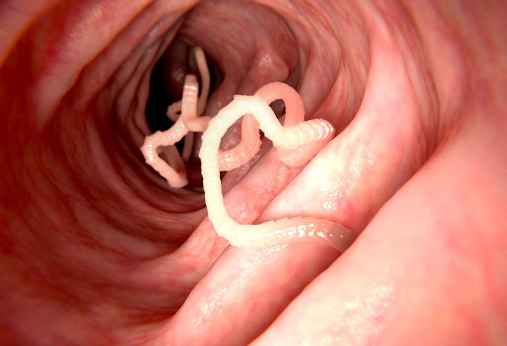 Paraziták klinikai kezelése, Férgek klinikai kezelése. Klinikai kezelés a paraziták számára