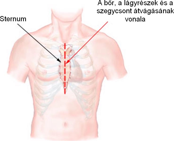 mellkas gyulladás a férgek fertőző betegség, vagy sem