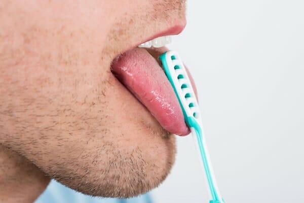 nyelv fehér, rossz szájjal borított