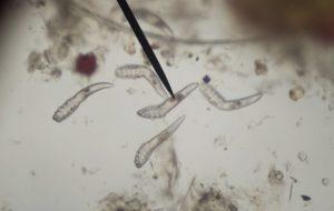 paraziták a székletben 1