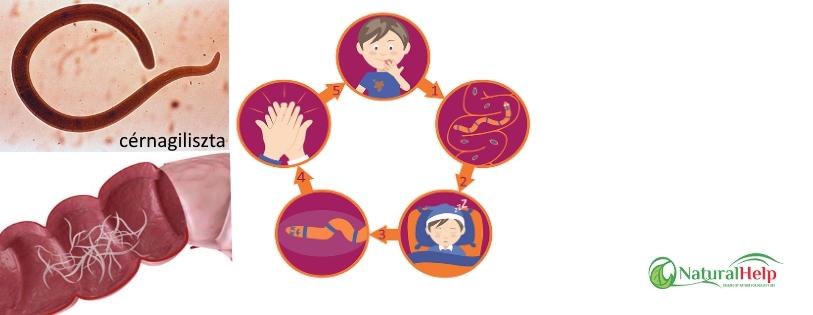paraziták kezelése badami gyermekekben