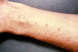 schistosome paraziták